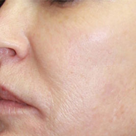 dermasweep-pictures