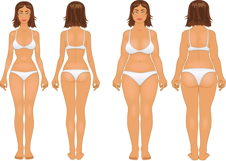 Liposuctions-Methods