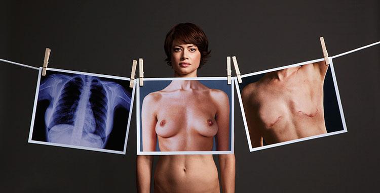 Angelina-Joile-Cancer