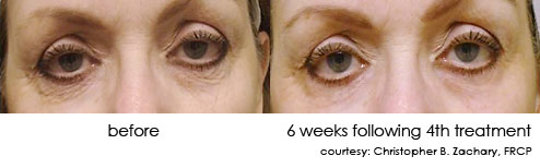 dermasweep-pictures-2