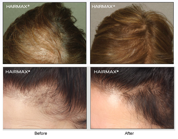 HairMax_BA_Females2